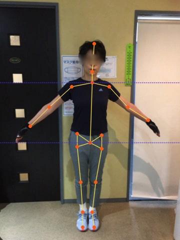 体の歪みを数値で可視化